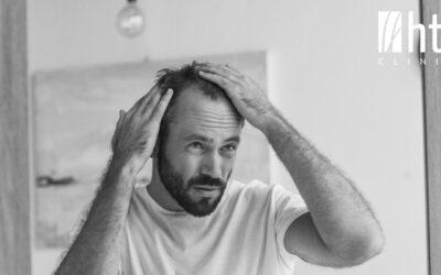 Cómo prevenir la caída del cabello en hombres