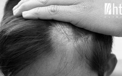 Cómo tratar la alopecia androgénica