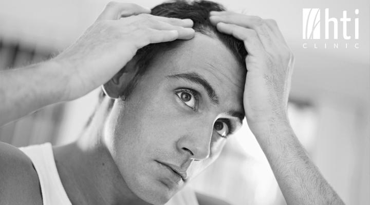 Cuanto tarda en crecer el cabello después de un trasplante